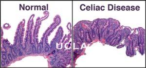 Celiac_disease