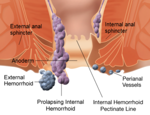 Internal_and_external_hemorrhoids1